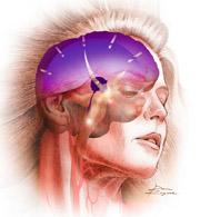 danni meningite