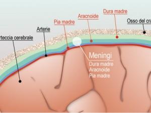 meningi